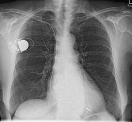Herzschrittmacher - Bildquelle: Wikipedia / Th. Zimmermann (user:THWZ), Namensnennung – Weitergabe unter gleichen Bedingungen 3.0 Deutschland