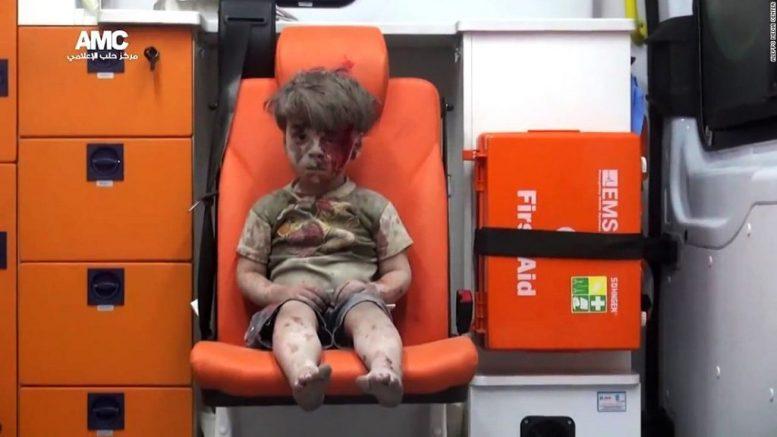Little Omran - Bildquelle: www.activistpost.com